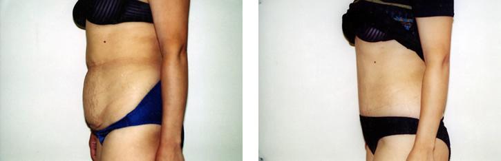 Abdominoplasty Tummy Tuck Photos