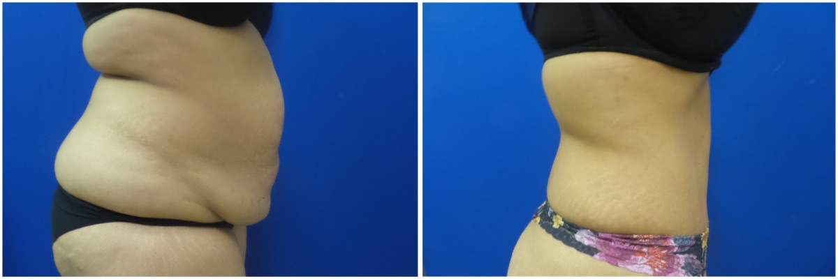 Abdominoplasty Tummy Tuck Photos