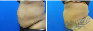 KK-abdominoplasty-before-after-photo-1-3