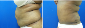 WJ-abdominoplasty-before-after-photo-1-2