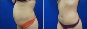 abdominoplasty-before-after-photo-4-3