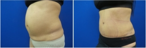 abdominoplasty-before-after-photo-5-2