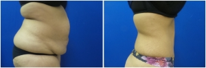 abdominoplasty-tummy-tuck-before-after-1-2