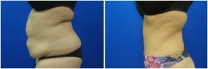 abdominoplasty-tummy-tuck-before-after-1-3