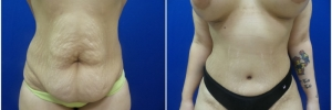 abdominoplasty1-1