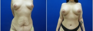 abdominoplasty1-3