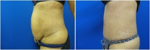 liposuction-abdominoplasty-before-after-photo-16-2