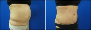 liposuction-abdominoplasty-before-after-photo-20-3