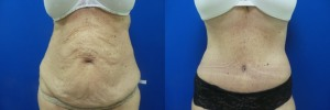 liposuction-abdominoplasty-before-after-photo-23-1