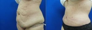 liposuction-abdominoplasty-before-after-photo-23-2