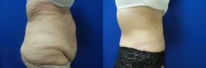 liposuction-abdominoplasty-before-after-photo-23-3