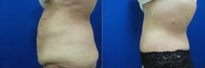 liposuction-abdominoplasty-before-after-photo-23-4