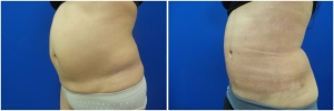 liposuction-abdominoplastybefore-after-photo-20-2