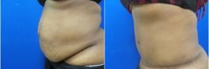 tummy-tuck-1-2