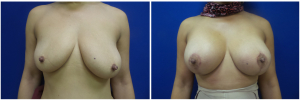 AH-breast-implants-augmentation-mastopexy-revision-before-after-1-1
