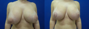 DQ-breast-implants-augmentation-mastopexy-revision-before-after-1-1