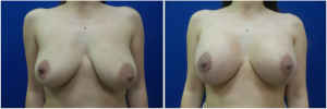 KN-breast-lift-mastopexy-revision-before-after-1-1