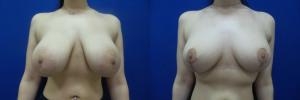 NT-breast-implants-augmentation-mastopexy-revision-before-after-1-1