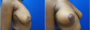breast-lift-1-3