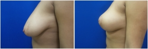 breast-lift-mastopexy-before-after-4-4