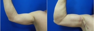 bicep-implants-1