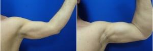 bicep-implants-2