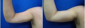 bicep-implants-3-1