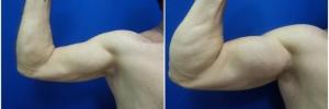 bicep-implants-4-1