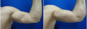 bicep-implants-4-2
