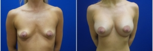 breast-augmentation-12-2