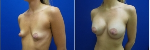 breast-augmentation-12-3