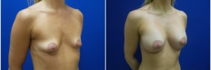 breast-augmentation-12-5