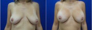 breast-augmentation-14-2