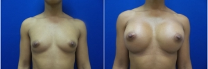 breast-implants-13-1