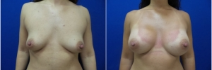 breast-implants-15-1