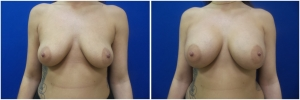 breast-implants-augmentation-18-1