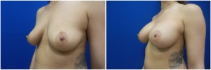 breast-implants-augmentation-18-2