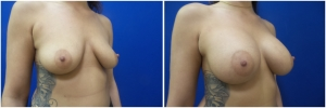 breast-implants-augmentation-18-3