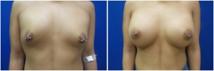 breast-implants-augmentation-19-4