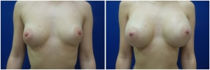 breast-implants-augmentation-before-after-20-1