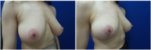 RR-breast-reduction-before-after-photo-1-4