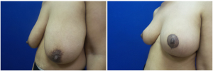 SJ-breast-reduction-before-after-photo-1-3