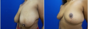 breast-reduction-3-3