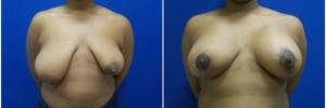 breast-reduction-4-1