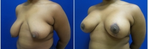 breast-reduction-4-5