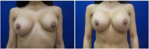 breast-revision-before-after-2-1