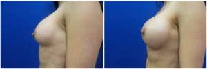 breast-revision-before-after-2-2