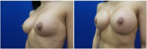 breast-revision-before-after-2-5