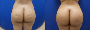 FP-buttock-implants-before-after-1-1
