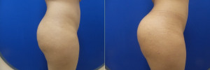 FP-buttock-implants-before-after-1-2
